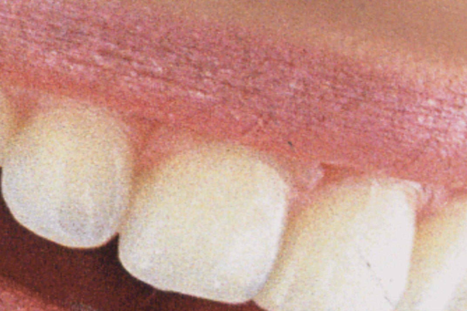 Sănătatea cavității orale